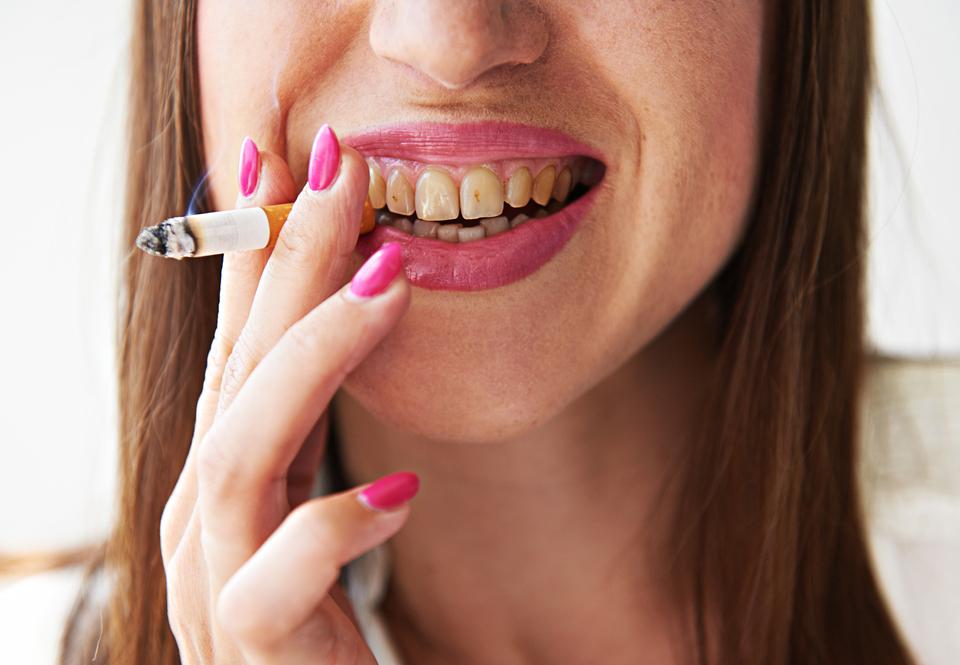 Photo of Merokok Mempengaruhi Kesihatan Mulut Anda?