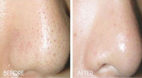 How-to-Get-Rid-of-Large-Pores-on-Nose-–-Before-and-after-image