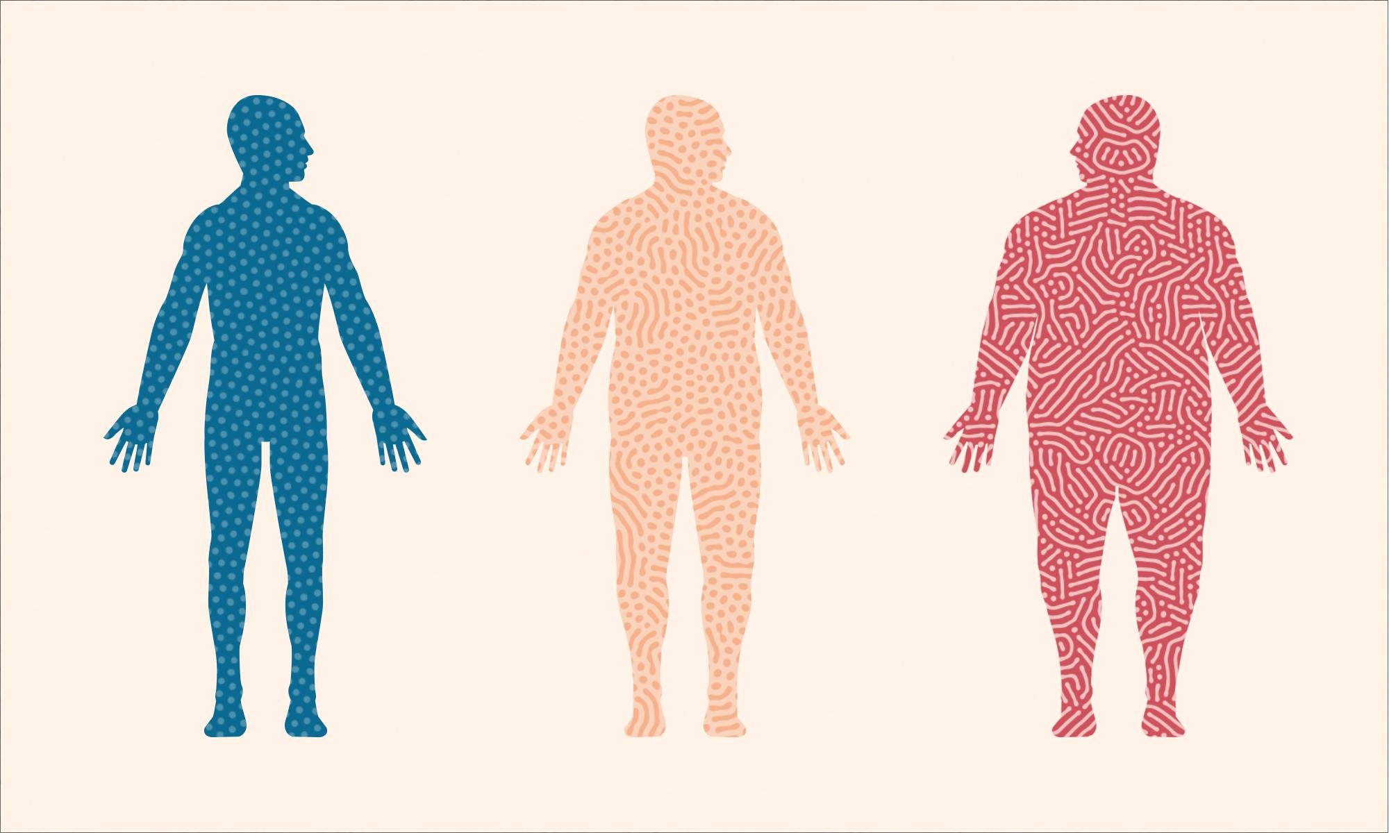Obesity And Its Link To Cancer