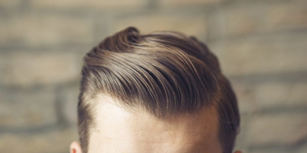 Photo of Things You Need To Know About Male Pattern Baldness