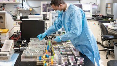 Photo of Kajian: Mereka Yang Mempunyai Simptom Ringan Covid-19 Boleh Mengalami Kerosakan Organ Dalaman Pada Jangka Masa Panjang